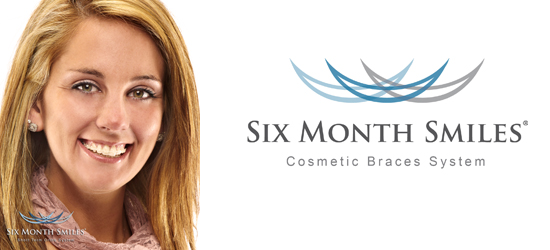 6 month smiles Stoke-on-Trent | Six month smiles Derbyshire | Inman aligner Derbyshire | Clearstep braces Stoke-on-Trent